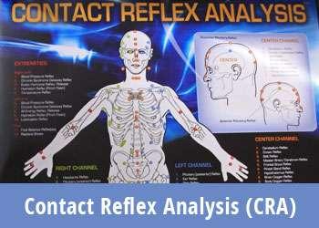 Contact Reflex Analysis (CRA)
