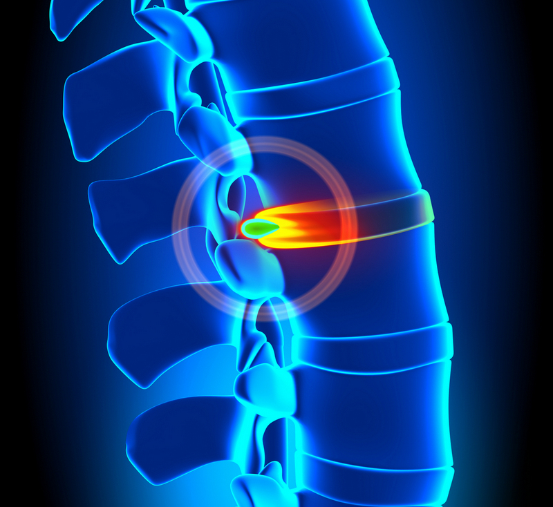 Herniated Disc Degeneration