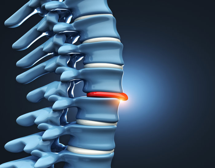 herniated disc syndrome